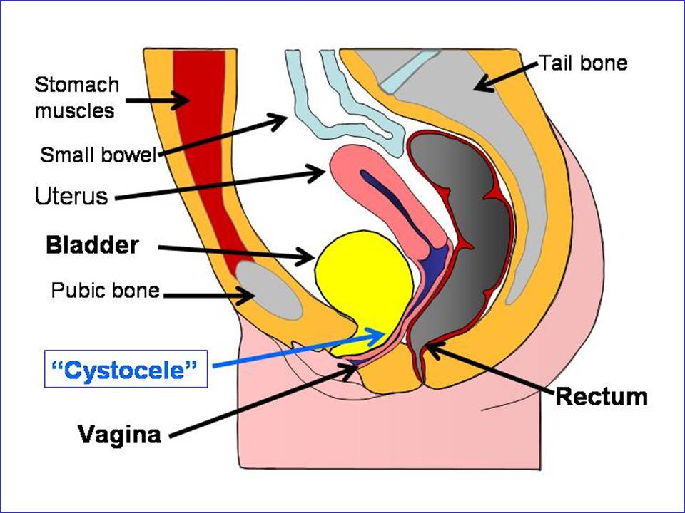 Pain with urination and Vaginal bleeding: Common Relat
